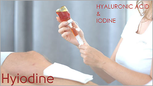 Hyiodine esettanulmany1
